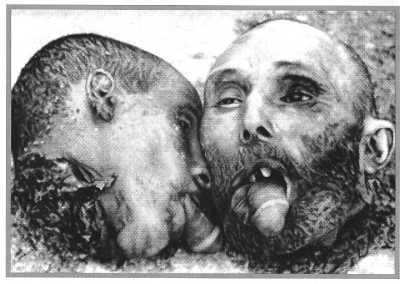 Torture douar Zenata